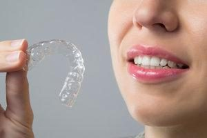Invisalign Mount Eden Auckland | All Smiles Dental